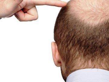5656 1 360x270 - Пересадка волос на голове — что это за процедура