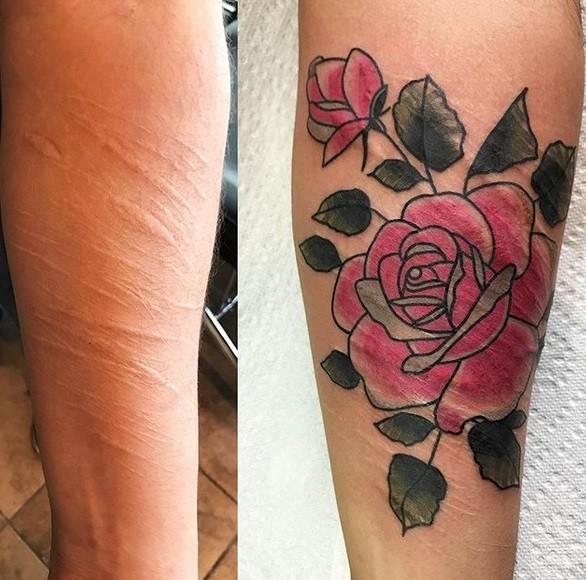 0214 - Татуировки превращают шрамы в произведения искусства, которые больше не хочется скрывать