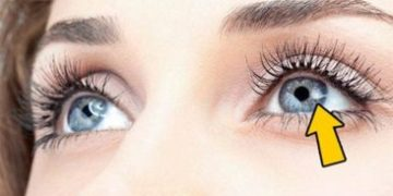eyes 1 h e1516904751423 360x180 - 12 вещей, которые глаза могут рассказать о вашем здоровье