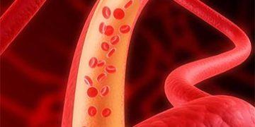 problems arteries h 360x180 - О чём предупреждает тело: 4 признака, что у вас серьёзные проблемы с артериями