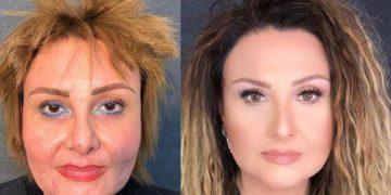 21 1212 1076642422 360x180 - 30 женщин до и после макияжа, доказывающие, что помолодеть можно без пластических операций