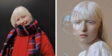 vayvayvay 700x366 360x180 - Девушку-альбиноса обижали в школе из-за странной внешности. А она выросла и покорила мировые подиумы