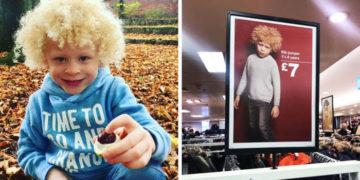 aypyvapyv 700x366 360x180 - 5-летний мальчик-альбинос стал моделью, после того как мама опубликовала его фото в Фейсбуке