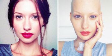 elizavetabulokhova01 360x180 - Врачи сказали модели сделать аборт после того, как ей удалили 95% челюсти из-за рака, — и вот что она сделала