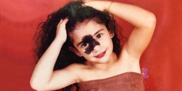 1565353250 61bfdd7cde558d3f090c37700be85b0f 700x366 360x180 - Бразильянку дразнили из-за родимого пятна, но теперь она модель и рушит стандарты красоты