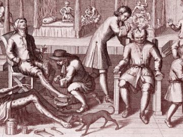 335197 800 360x270 - Как в старину лечили венерические болезни: свинцовые гири, кнут и ртутные мази