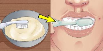 2 360x180 - Как дешево отбелить зубы