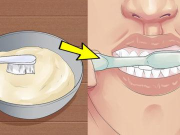 2 360x270 - Как дешево отбелить зубы